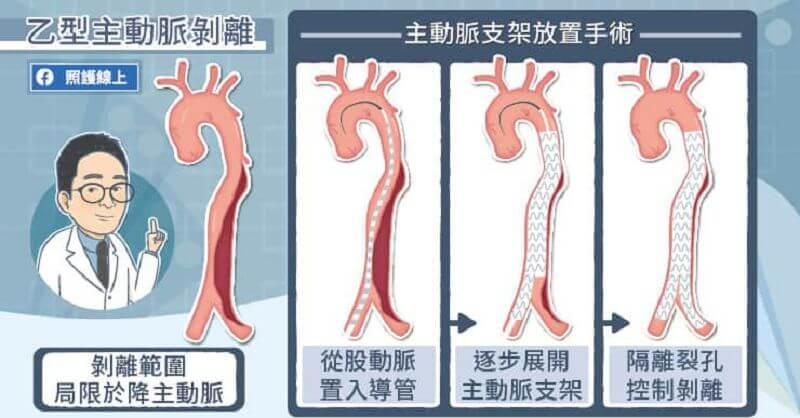 主動脈剝離
